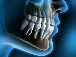 Odontomedik dental implants